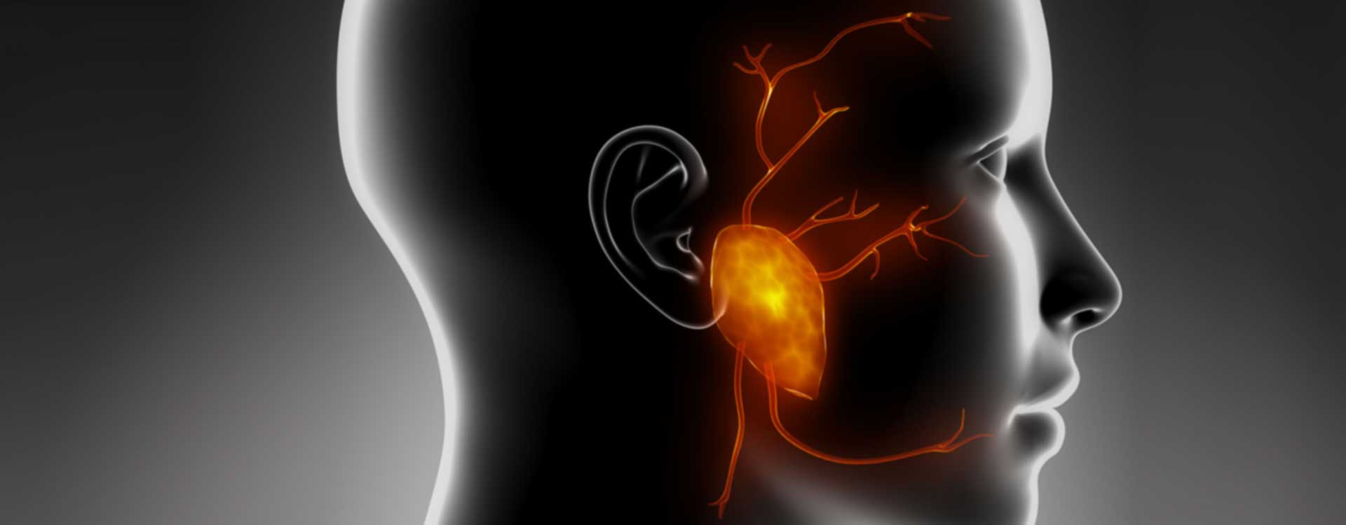 όγκοι παρωτίδας γενικός χειρουργός καφετζής ηλίας δημήτριος αθήνα